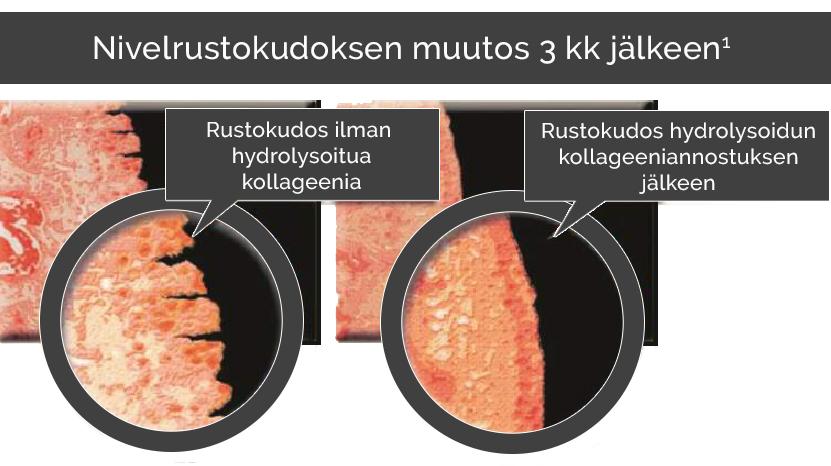 Nivelrustokudoks eheytyi hydrolysoidun kollageenin avulla